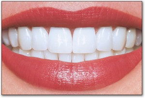 teeth whitening pic 2